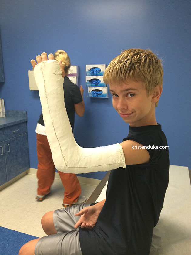 more broken arm