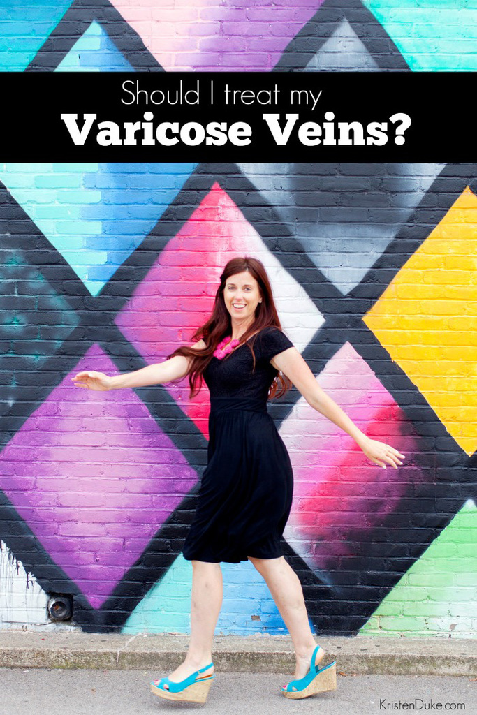 Should I treat my Varicose Veins?